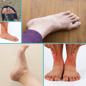Totally Podiatry posts(11)